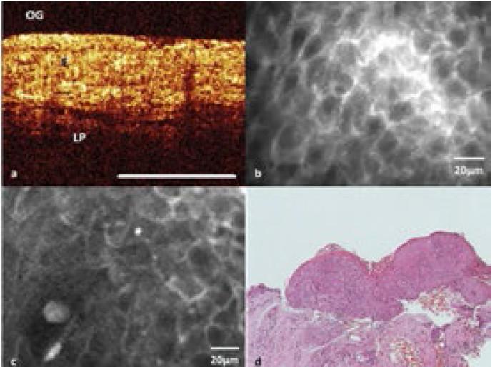 Optická koherentní tomografie (A) – léze hlasivky se zachovaným horizontálním vrstvením tkáně se silně zvýšenou tloušťkou epitelu (E – epitel, LP – lamina propria); konfokální laserová endomikroskopie (B) – obraz normální tkáně kontralaterální hlasivky; konfokální laserová endomikroskopie (C) – léze hlasivky; histopatologický obraz tkáňové biopsie barvené hematoxylin-eosinem z léze na hlasivce (D) – dysplazie vysokého stupně.