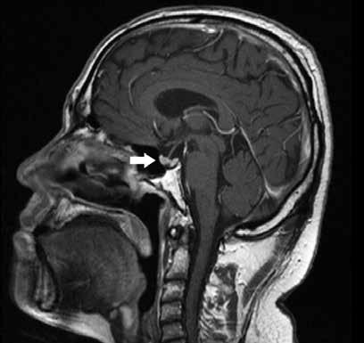 MRI mozku a hypofýzy po ukončení indukční fáze léčby