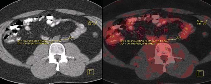PET/CT pacienta s perzistující retroperitoneální masou po chemoterapii.
