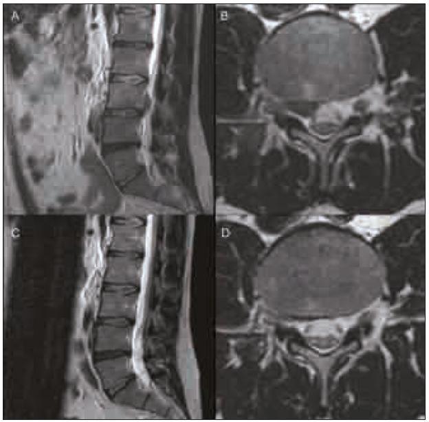 MR-T2 vážené obrazy v sagitální a transverzální rovině. Obr. 2a, b. Laterální herniace disku L3/4 doprava se sekvestrem dislokovaným kraniálně. Obr. 2c, d. Kontrolní vyšetření za 20 týdnů ukázalo kompletní regresi sekvestru.
