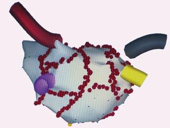 Trojrozměrné elektro anatomické mapování pomocí systému CARTO, projekce PA – posteroanteriorní. Na obrázku je anatomická rekonstrukce levé síně a plicních žil, červené body jsou místa aplikace radiofrekvenční energie při katetrové ablaci. Jsou znázorněny širší obkružující linie kolem anterplicních žil, 1 – lineární linie ve stropu levé síně, 2,3 – lineární linie, které spojují dolní okraj obkružující linie kolem levostranných plicních žil s mitrálním anulem, 4 – spojnice širších obkružujících linií mezi dolními plicními žilami u pacienta s permanentní fibrilací síní.