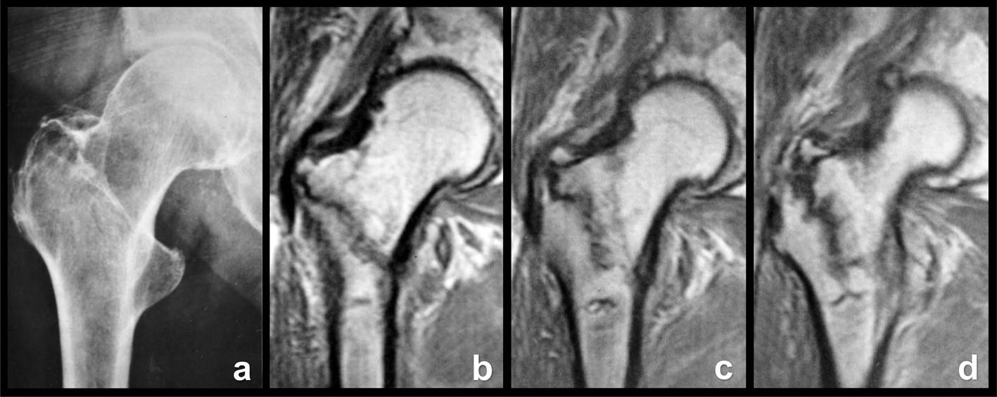 Okultní pertrochanterická zlomenina: a – rtg snímek, lomná linie není patrná; b – frontální MR řez ventrální částí proximálního femuru, lomná linie dosahuje až k malému trochanteru; c – frontální MR řez střední částí proximálního femuru, inkompletní lomná linie probíhá vertikálněji; d – frontální MR řez dorzální částí proximálního femuru, je patrné odlomení apexu velkého trochanteru i komprese spongiózy podél lomné linie.  Fig. 10: Occult pertrochanteric fracture: a – radiograph, fracture line cannot be seen; b – frontal MRI section through the anterior part of the proximal femur, the fracture line extends as far as the lesser trochanter; c – frontal MRI scan through the middle part of the proximal femur, incomplete fracture line passes more vertically; d – frontal MRI scan through the posterior part of the proximal femur, both separation of the apex of the greater trochanter and compression of the cancellous bone along the fracture line can be seen.