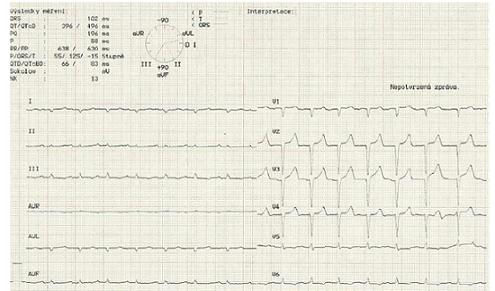 Elektrokardiogram ukazující nízkou voltáž QRS komplexů v končetinových svodech.