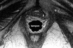 Karcinom pochvy: na axiálním řezu je zjevná nádorová infiltrace přední stěny pochvy, asymetricky větší vpravo, a její vztah k uretře.