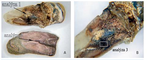 Stav rozlomeného zubu 35 (a), výrazné ztmavnutí zubní tkáně (b)