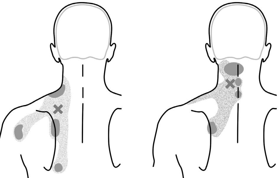 Typické trigger pointy na šíji