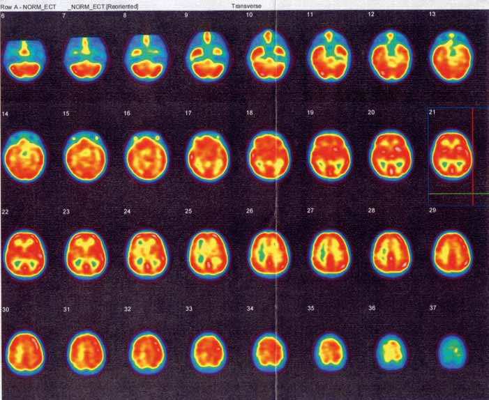 Obr. 3b. SPECT vyšetření mozku neprokazuje ložiskovou poruchu relativní mozkové perfuze.