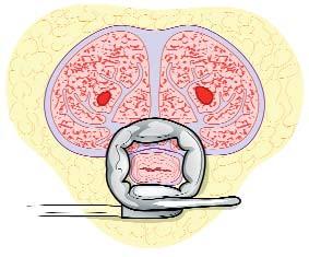 Transkoroprální umístění manžety. A. Pravoúhlý disektor procházející přes korporotomie obsahuje pod manžetou tkáň tunika albuginea B. Transkorporálně procházející manžeta obkružuje vedle močové trubice i část tunika albuginea