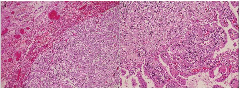 Překrvená plicní tkáň s ohraničenou metastázou anaplastického meningiomu, obdobného vzhledu jako ve vzorku z intrakrania (a). Struktury anaplastického meningeomu s buněčnou atypií, hyperchromasií a mitotickou aktivitou do 10 mitóz na 10 HPF, invadujícího do kalvy, kůže, fokálně nekrotizujícího (není zachyceno v řezu) a přecházejícího do papilární varianty (b). Barvení hematoxylin eozinem.