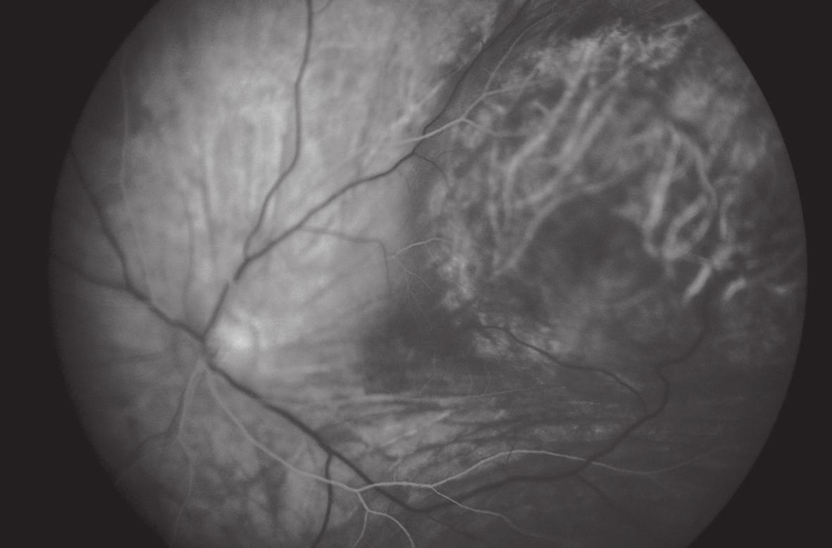 Arteriálna fáza FAG – dvojcirkulačný vzor