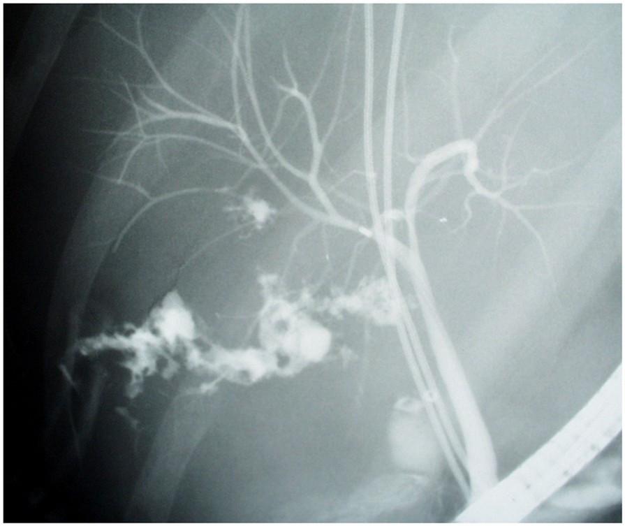 Průstřel jater a žaludku – ERCP s únikem KL, papilosfinkterotomie, nasobiliární drenáž