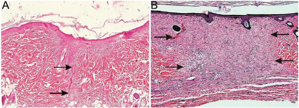 A – v incíznej rane hojacej sa 2 týždne je možné vidieť ukončený proces reepitelizácie bez tvorby granulačného tkaniva (šípky); B – v excíznej rane hojacej sa 2 týždne je taktiež možné vidieť ukončený proces reepitelizácie, pod epidermou sa však nachádza novovytvorené granulačné tkanivo (šípky), ktoré v tomto čase hojenia vyzrieva a postupne sa mení na jazvu (zväčšenie 100×, farbenie hematoxylín a eozín)