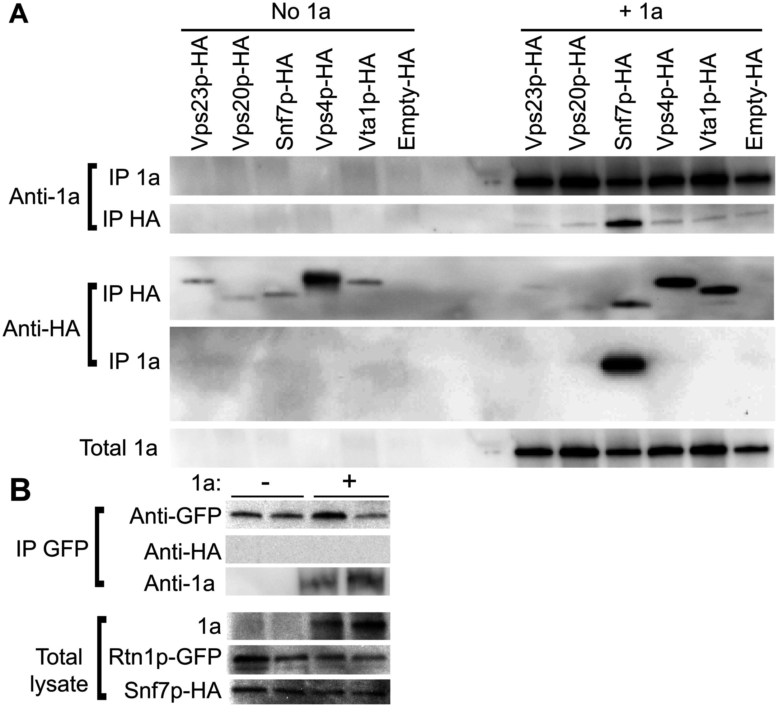 Snf7p immunoprecipitates with BMV 1a but not with Rtn1p.