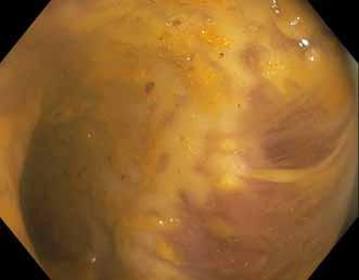Toxické megakolon při klostridiové enterokolitidě. Fig. 6. Pseudomembranous colitis with toxic megacolon.