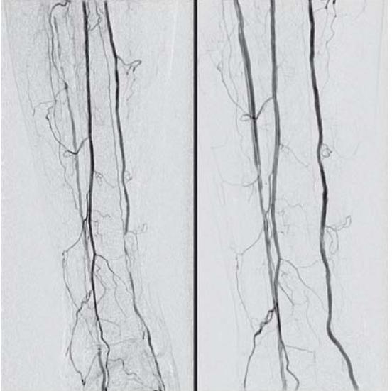 Obr. 3.2. DSA artérií distálnej časti predkolenia