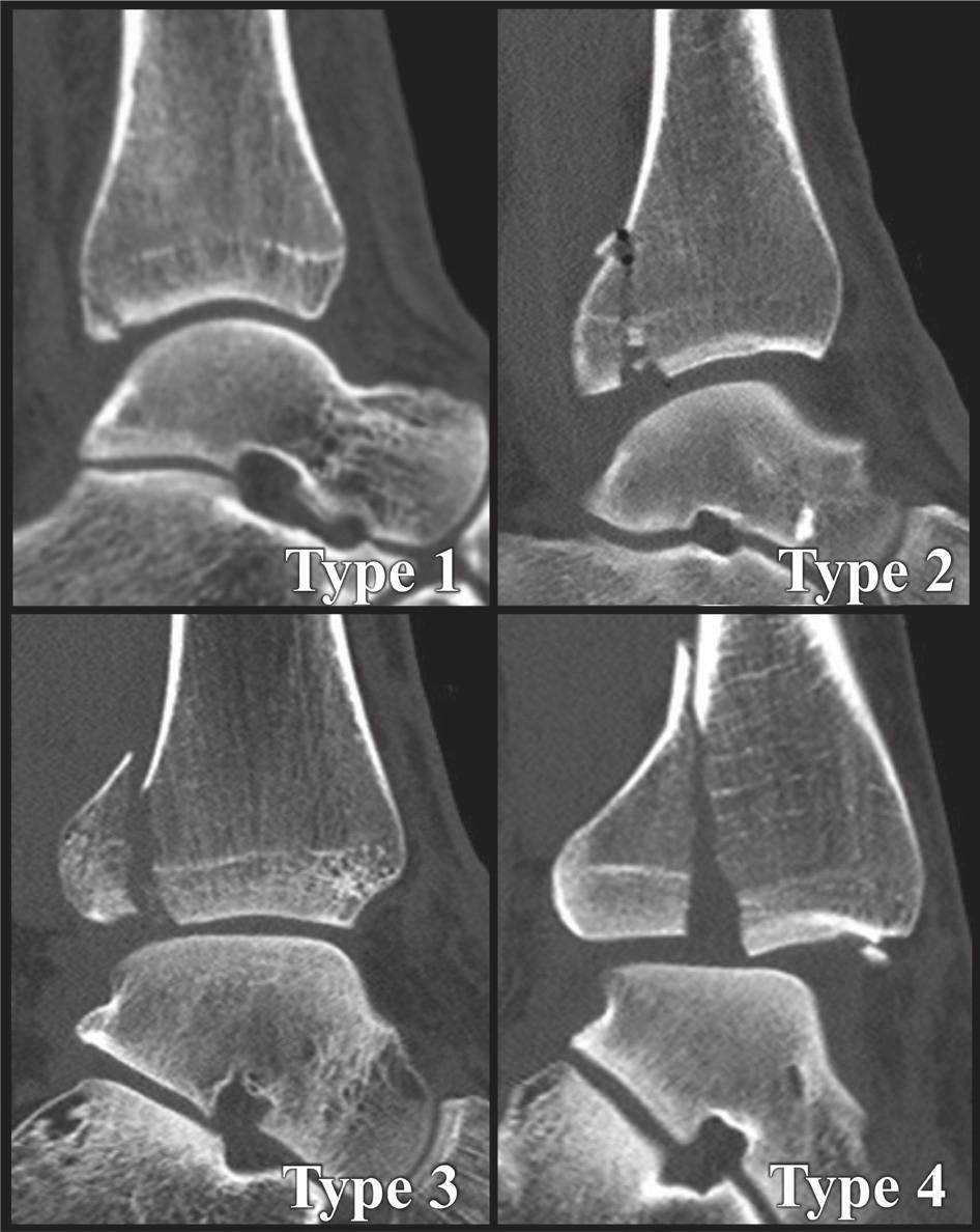 Anatomická 3D CT klasifikace z r. 2015 [34] Jednotlivé typy z Obr. 6 na CT sagitálních CT řezech. Fig. 8: Anatomical 3D CT classification published in 2015 [34] Individual types from Fig. 6 on sagittal CT scans.