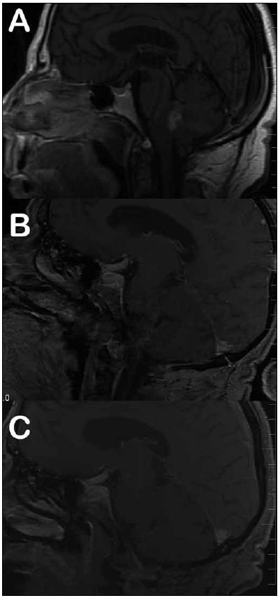 Subtotální resekce ependymomu s adjuvantní radioterapií.