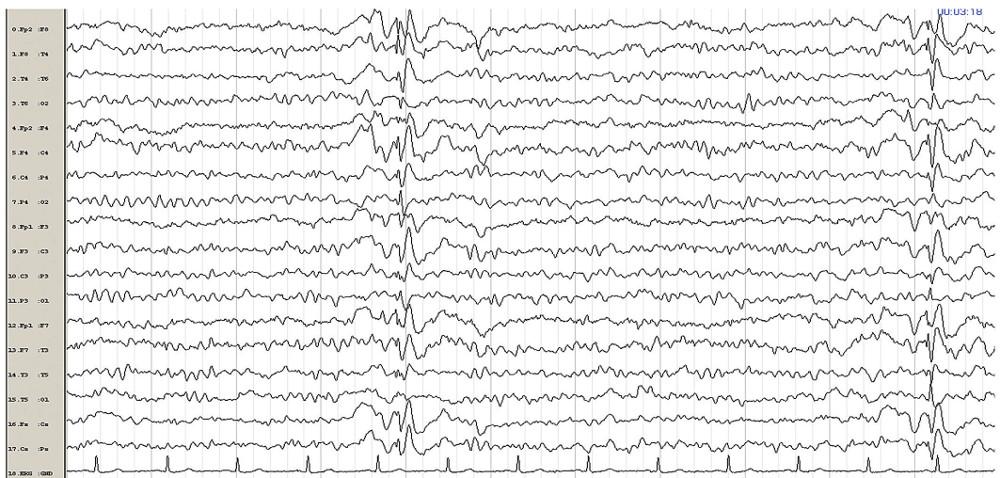 Kontrolní EEG po normalizaci klinického stavu po podání valproátu. Elektrografické projevy statu absencí mizí, ale jsou patrné epizody jednotlivých generalizovaných symetrických synchronních SW komplexů.