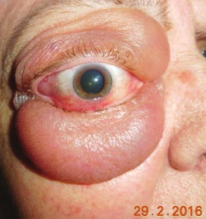 Typický obraz infiltrácie mäkkých tkanív očnice pri lymfómovom ochorení