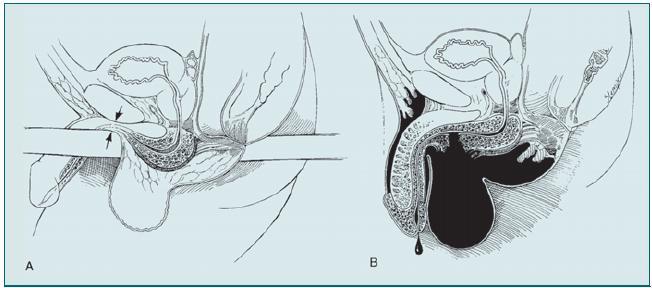 Poranění přední části močové trubice.