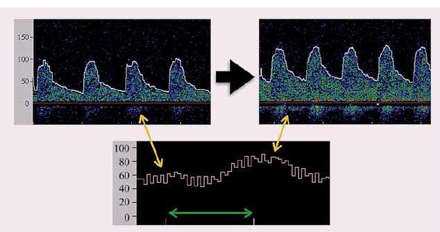 Příklad apnoického testu. Vlevo nahoře – pulzní dopplerovká křivka toku krve v střední cerebrální tepně před zahájením apnoe, vpravo nahoře – záznam pulzní dopplerovské křivky 4 sekundy po ukončení apnoe, uprostřed dole – kontinuální záznam křivky střední průtokové rychlosti se zelenou šipkou označující délku trvání apnoe. Škála vždy v cm/s. Mírné snížení průtokové rychlosti v úvodu apnoe je běžné, je však nutno se vyvarovat významným poklesům spojeným s Valsalvovým manévrem.
