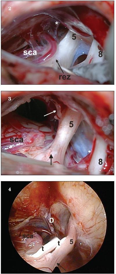 """Obr. 2., obr. 3., obr. 4. Peroperačný pohľad u toho istého pacienta  ako NMR na obr. 1. Pohľad do horného kompartmentu pontocerebelárneho uhla operačným mikroskopom a endoskopom na neurovaskulárny konflikt v oblasti výstupu nervu z mozgového kmeňa. Všimnite si zmenu farby v transientnej zóne označenej """"rez""""."""