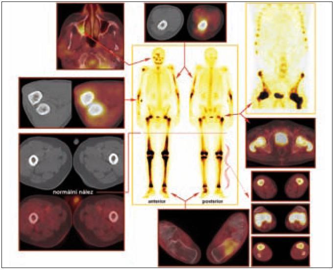 Srovnání nálezů z PET, PET/CT, klasické kostní scintigrafie a SPECT vyšetření u pacienta s Erdheimovou-Chesterovou chorobou.  Celotělová scintigrafie skeletu (uprostřed) a SPECT (vpravo nahoře): Abnormální akumulace radiofarmaka v oblasti hlavy vpravo (zygomatický oblouk, frontální oblast a mandibula), v oblasti horních končetin (střední část levé pažní kosti, proximální části vřetenních kostí oboustranně a v pravém ramenním kloubu) a dále i v oblasti dolních končetin (proximální třetina a distální polovina obou stehenních kostí, obě kosti holenní a kost hlezenní a patní vlevo).  PET a PET/CT: Diskrétní rozšíření a struktura s vyšší denzitou dorzální části laterální stěny dolní poloviny pravého maxilárního sinu, méně nápadný nález také v dorzální části mediální stěny ve stejné etáži. Stejný charakter změn zasahuje kaudálně až do dorzální části alveolárního výběžku maxily vpravo. Výše popsané změny mají pozitivní korelát v PET obraze. Na bázi pravého maxilárního sinu je minimální měkkotkáňový lem.  Výrazně sklerotická struktura skeletu je prostoupena osteolytickými okrsky, v úsecích diafýz je patrné zesílení kompakty, rovněž se zobrazila patologická struktura dřeňové dutiny se zvýšením denzity tkáně v okrajích. Patologická struktura je v oblasti horních končetin (převážná část levého humeru pouze s vynecháním proximální části, v pravém humeru naopak okrsek patologické struktury v oblasti hlavice a v blízkosti loketního kloubu, z větší části je postižena ulna a radius oboustranně s maximem změn v proximálních úsecích) a v oblasti dolních končetin (oba femory s vynecháním úseku asi střední třetiny diafýz, obě tibie, neúplně obě fibuly, vlevo výrazně kost patní, vpravo je v kosti patní jen nevýrazný okrsek při dolním okraji).