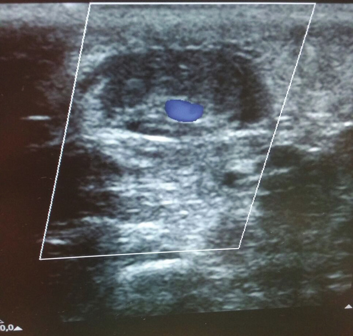 Ultrazvuková kontrola žíly po prvním podvazu s patrným malým reziduálním průtokem
