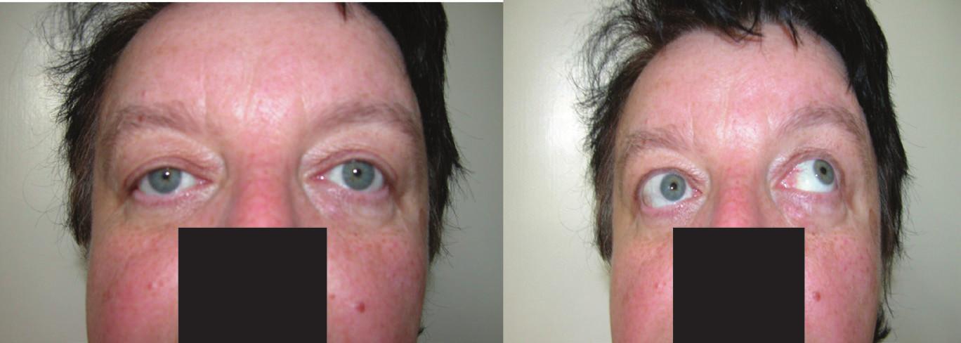 <b>Y-exotropia</b>: minimální levostranná divergence a sursumvergence v primárním postavení bulbů při fixaci pravého oka, při elevaci obou bulbů porucha elevace pravého oka v addukci – 3 st., potvrzuje diagnózu pravostranného Brownova syndromu