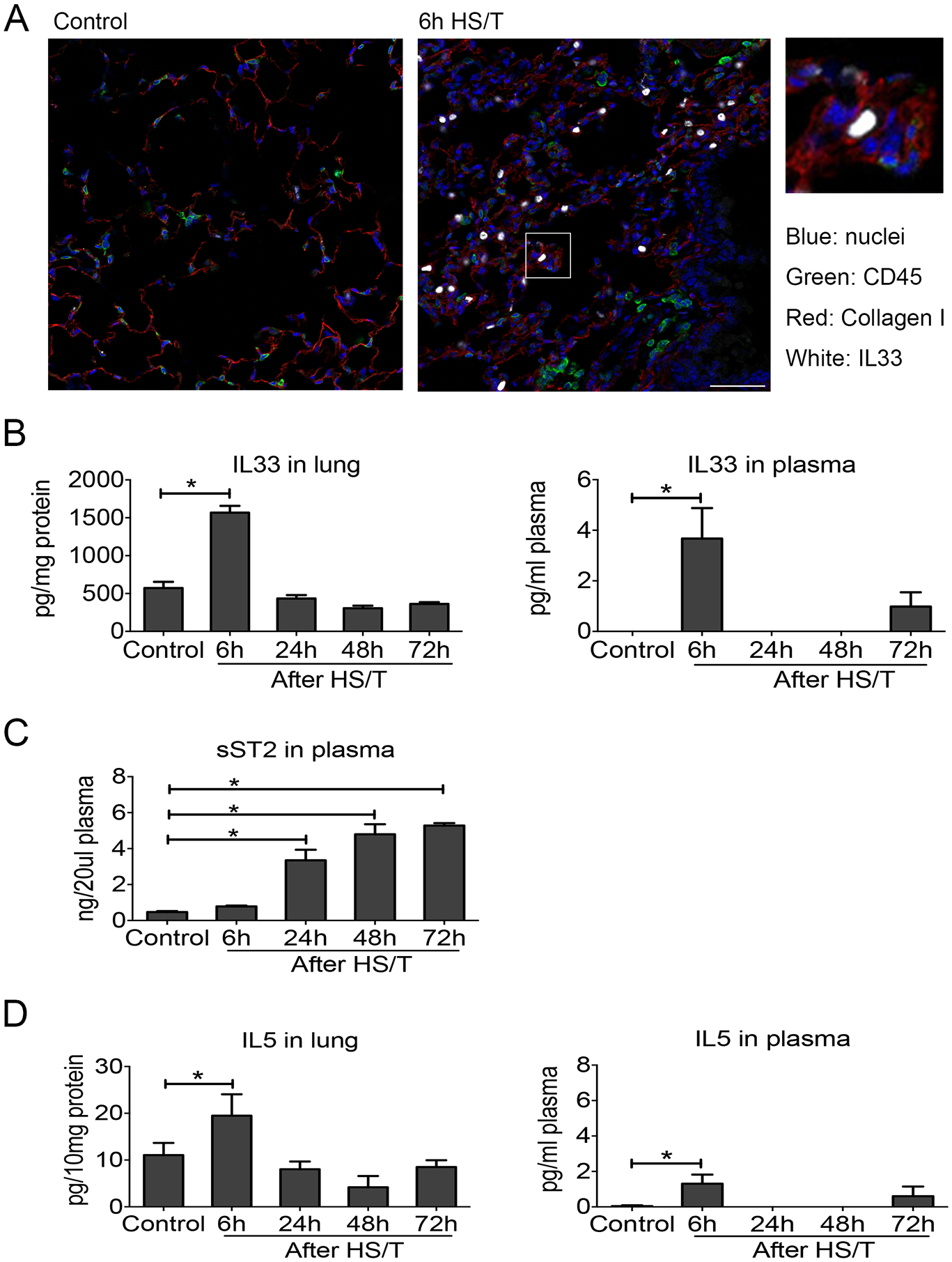 Change of interleukin (IL) 33 and type 2 cytokine IL5 in lung and plasma of mice after resuscitated hemorrhagic shock and tissue trauma (HS/T).