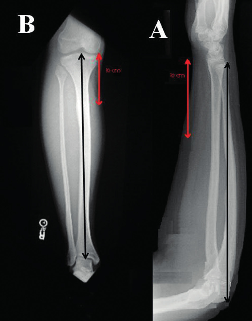 Figure 1. Antero-posterior X-rays of the right forearm (A) and leg (B) and the area of measurement in the ulna and tibia.