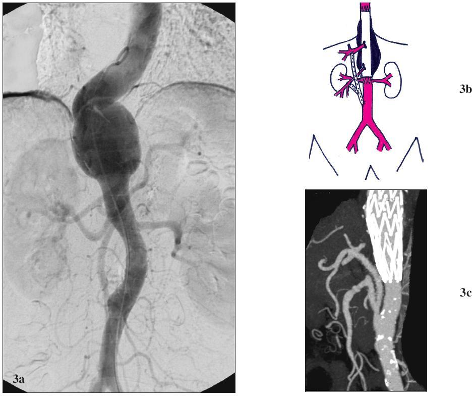 Žena 59 let s vysokým operačním rizikem a TAAA V 3a: Předoperační CTA. Výduť začíná v oblasti 10 mezižebří, zaujímá odstup TC a končí nad odstupem AMS. 3b: Schéma kombinované léčby. Výduť je exkludována pomocí tubulárního aortoaortálního stentgraftu (zaveden cestou AFC). TC je revaskularizován bypassem založeným z aorty nad bifurkací s odstupem pro AMS. 3c: Pooperační CTA. Technicky úspěšná exkluze výdutě pomocí stentgraftu a orgánová revaskularizace. Fig. 3. Female, aged 59, with a high operative risk and TAAA V 3a: Pre-operative CTA. The aneurysm starts in the 10<sup>th</sup> intercostals space, involves the CT origin and ends over the SMA origin. 3b: Combined treatment scheme drawing. The aneurysm is excluded using a tubular aorto-aortic stent-graft (introduced via CFA). CT is revascularised using a bypass created from the aorta over the bifurcation, with prosthesis interponate for SMA. 3c: Post-operative CTA. Technically successful aneurysm exclusion using a stent-graft, and organ revascularisation.