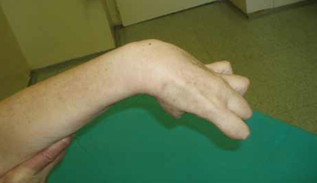 Obr. 10. Dvaašedesátiletá žena rok po ischemické CMP s levostrannou hemiparézou – flekční spasticita ruky s ulnární dukcí, addukcí a flexí palce, flexí prstů.