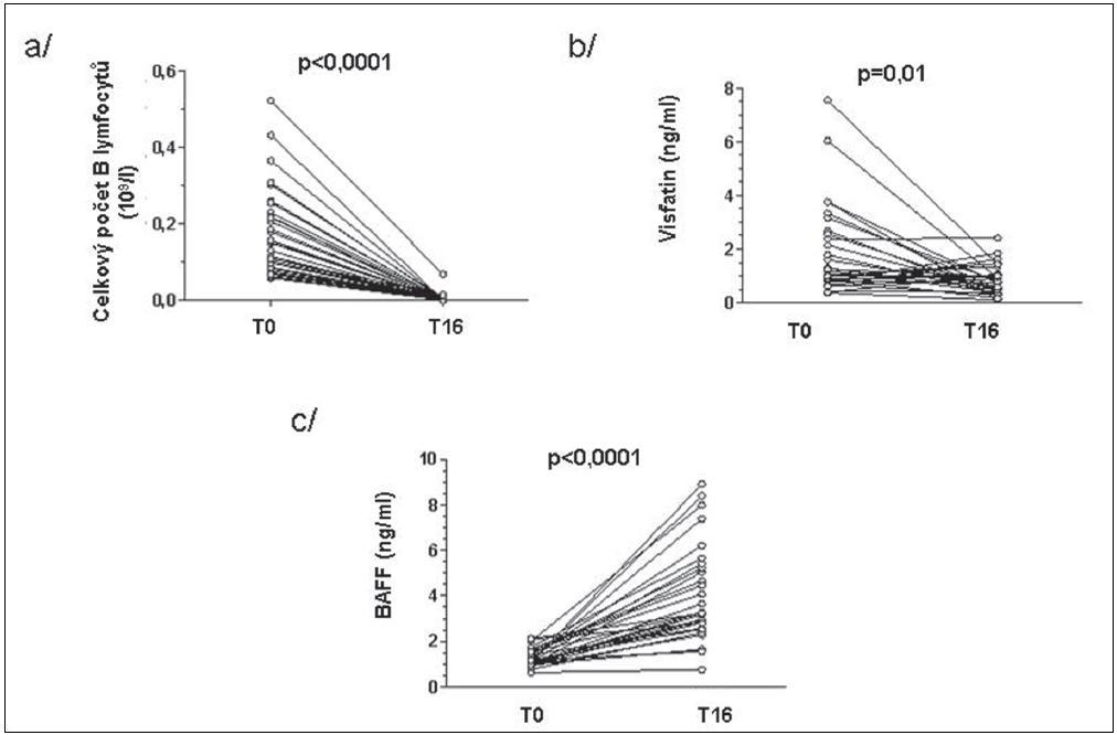 Změny celkového počtu B lymfocytů (a), visfatinu (b) a BAFF (c) u pacientů s RA před a 16 týdnů po zahájení léčby rituximabem.