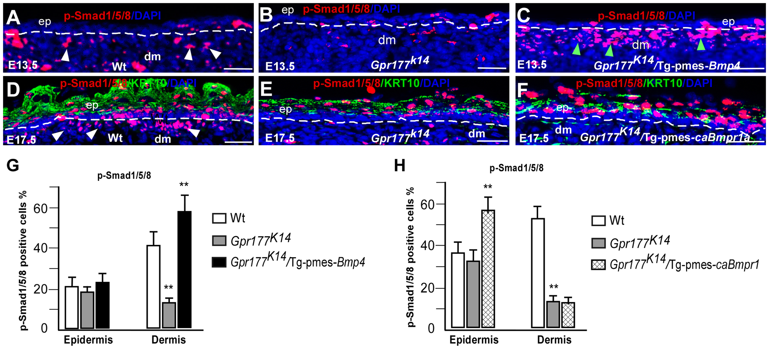 Transgenic pmes-<i>Bmp4</i> reactivates Smad1/5/8 signaling in the dermal mesenchyme in <i>Gpr177<sup>K14</sup></i>/Tg-pmes-<i>Bmp4</i>.