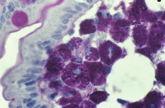 Masivní přítomnost PAS+ makrofágů v lamina propria střevní sliznice u Whippleovy nemoci.