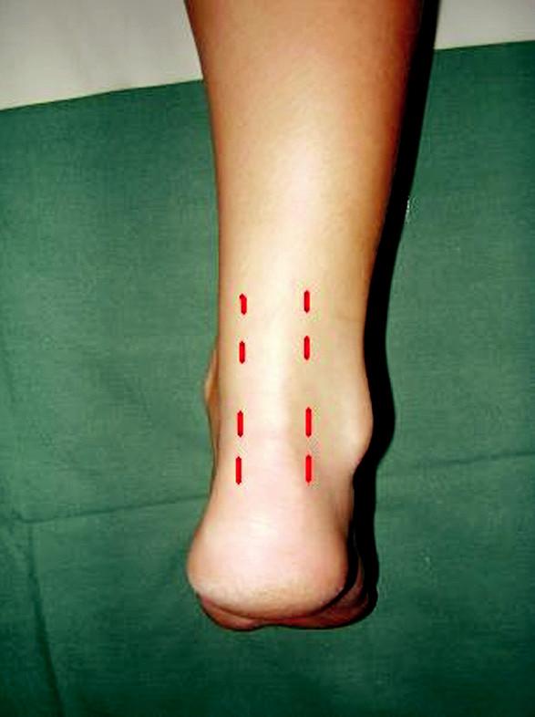 Přístup při perkutánní sutuře Pic. 3. Approach in a case of percutaeous repair
