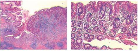 Histologický preparát ukazuje vředy s minimální zánětlivou reakcí, granulační tkání a obliterací cév.