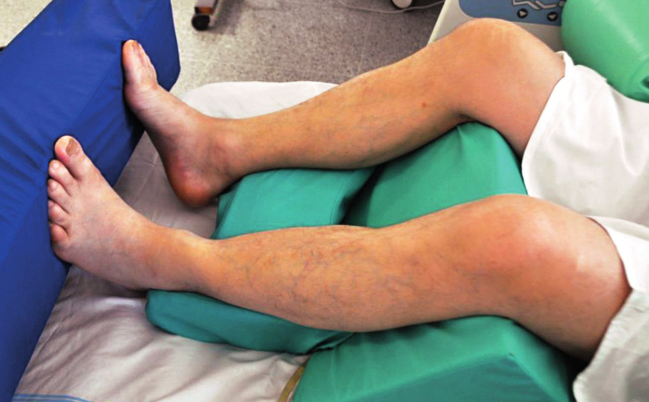Pozice na zádech – zajištění dolních končetin s flexí v koleni