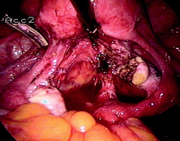 Stav po resekci endometriomu ovaria vpravo