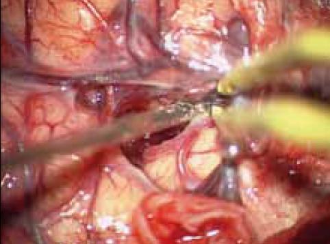 Cílené otevření Sylviovy rýhy, separace M2 a minimální kortikotomie v inzule.