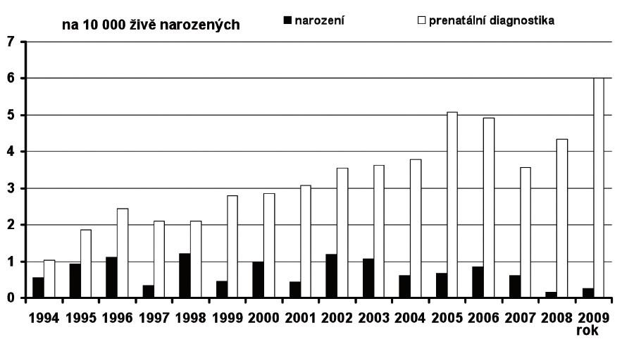 Prevalence Edwardsova syndromu v České republice v období 1994–2009, prenatálně a postnatálně diagnostikované případy Fig. 15. Prevalence of Edwards syndrome in the Czech Republic in 1994–2009, prenatally and postnatally diagnosed cases