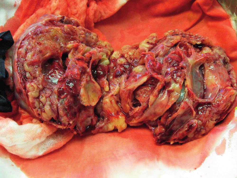 Tumor na řezu