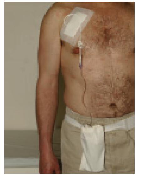 Aplikační systém pro kontinuální intravenózní léčbu treprostinilem.