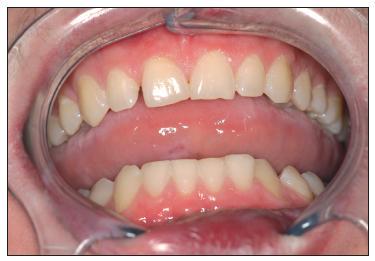 Po ukončení léčby dáseň a sliznice ústní dutiny bez zánětlivých změn.