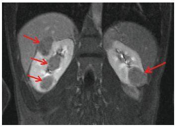 Vícečetné angiomyolipomy ledvin oboustranně (šipky) na MR vyšetření břicha v T2 vážených obrazech u 22letého muže