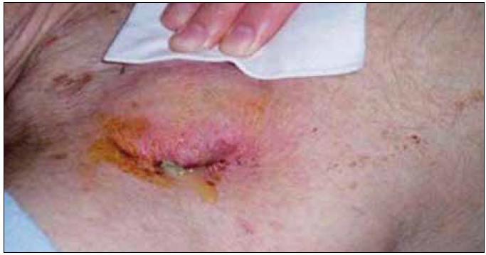 Infekcia kapsy ICD s erytémom, dehiscenciou a hnisavou secernáciou.