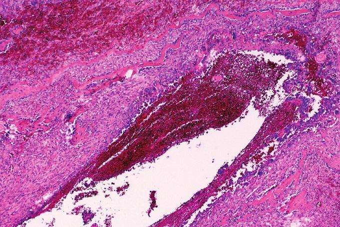 Reaktivní osteoplazie ve formě trámečků pletivové kosti je běžnou součástí vazivových sept aneuryzmatické kostní cysty. HE, x100.