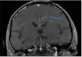 Peroperační MR kontrola, T1 vážení s kontrastem. Šipkou označen bioptický kanál končící v ložisku. Bez krvácivé komplikace. Fig. 2. Intraoperative MRI, T1 image with contrast. Channel after biopsy runs into the lesion (arrow). No postoperative bleeding.