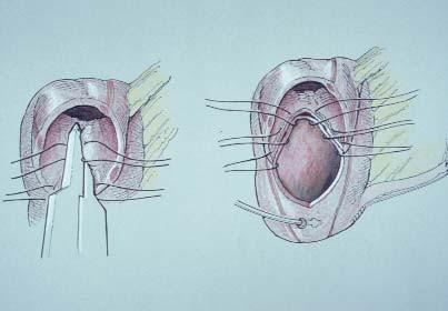 Levá ilustrace ukazuje uzavření rezervoáru pomocí vstřebatelného TA-stapleru. Rezervoár můžeme případně uzavřít pomocí pokračovací 3-0 vstřebatelné syntetické sutury.